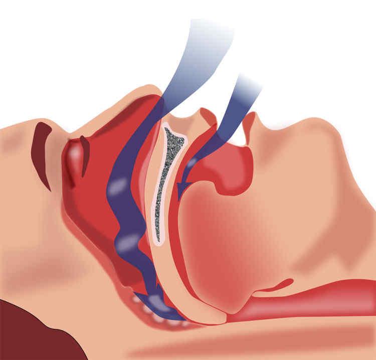 Sindrome delle apnee ostruttive nel sonno